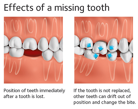 Missing tooth