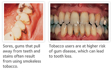 Gum disease smoking