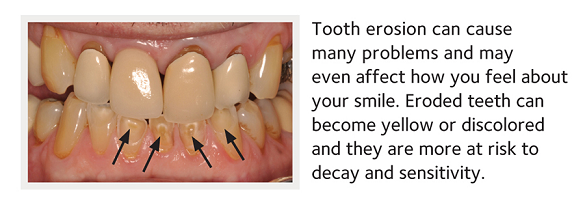 Eroded teeth